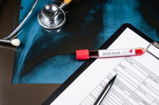 Coronavirus, in Piemonte tamponi anche ai medici di famiglia e agli operatori del 118